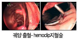 궤양 출혈-hemoclip 지혈술 사진